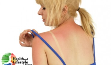 Home remedies for sunburn